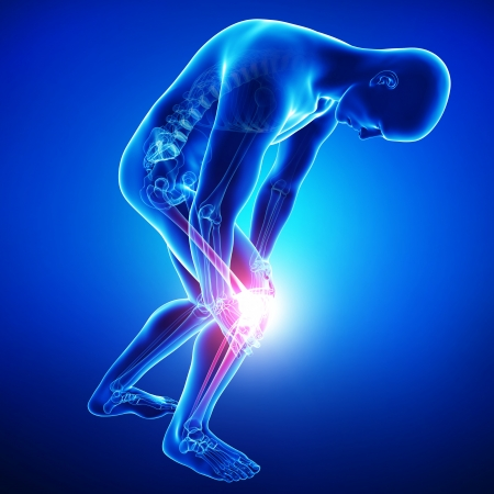 15482316 - male knee pain in blue