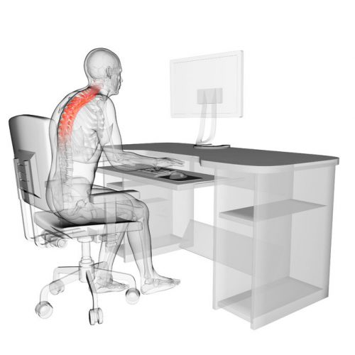 22584228 - 3d rendered medical illustration - wrong sitting posture